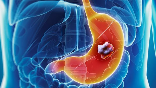 cancer-de-estomago_1b1785ef9a08d9b02c22d21f556bce77cd8c55a3.jpg